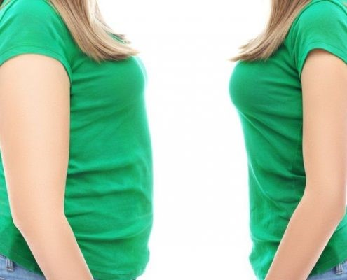 بعد از انجام عمل اسلیو معده بیمارچگونه وزن کم میکند؟