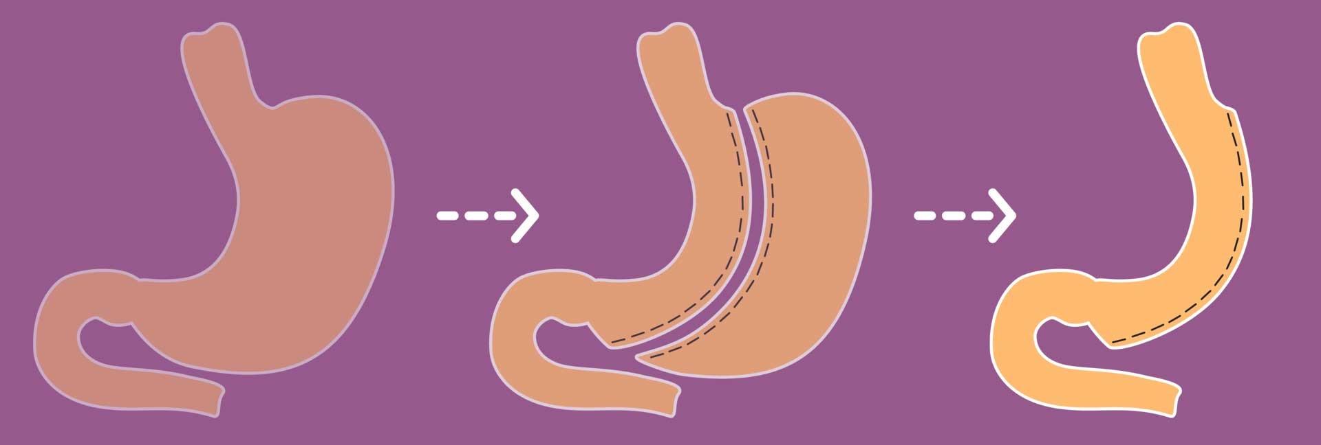 آیا با مزیت انجام عمل های جراحی برای کاهش وزن آگاهی دارید؟