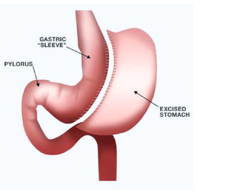 نکاتی که قبل از عمل جراحی حلقه گذاری معده باید رعایت کنید