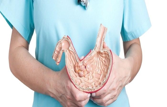 جراحی رینگ معده چه مزایایی دارد؟