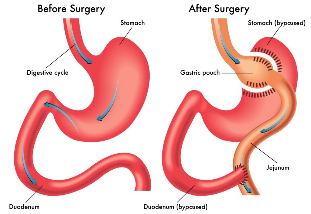 عمل جراحی بای پس معده چگونه است؟