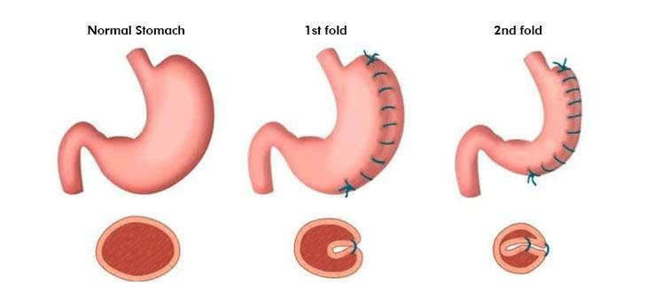 عمل جراحی پلیکاسیون معده چگونه است؟