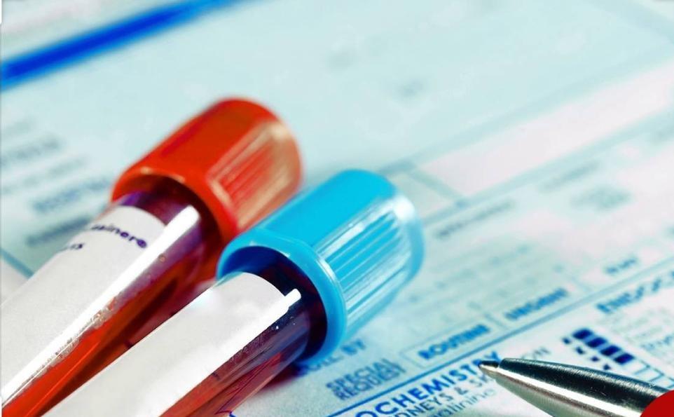 شرایط اختصاصی که بیمار کاندید عمل جراحی اسلیو معده باید داشته باشد، چیست؟
