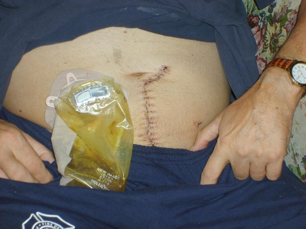 چه مدت بعد از جراحی لاپاراسکوپی فرد بهبود پیدا می کند