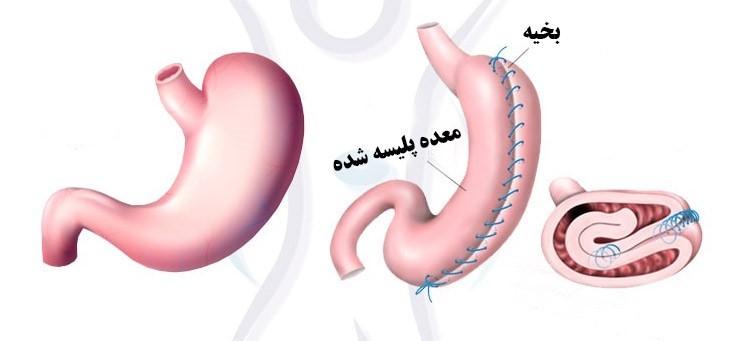 عمل جراحی پلیسه معده:
