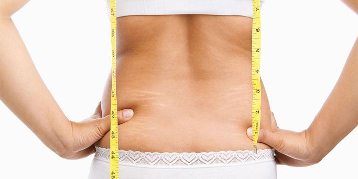 آیا عمل های جراحی برای کاهش وزن مناسب اند؟