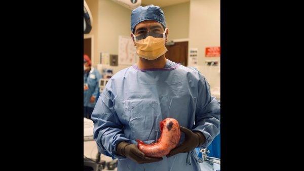 مزیت های جراحی اسلیو نسبت به روش بای پس و پلیکاسیون