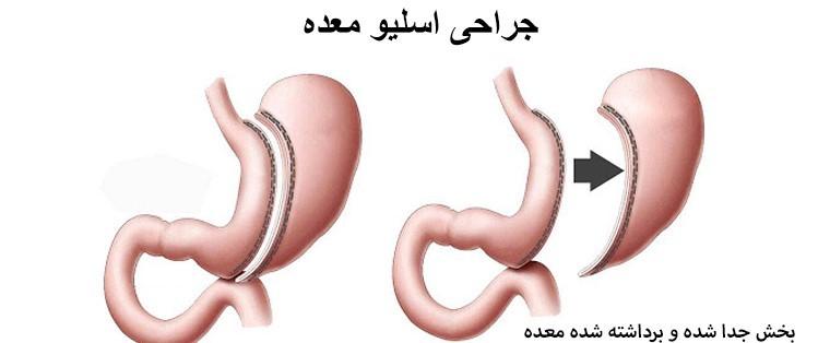 بهترین روش جراحی لاغری کدام است؟
