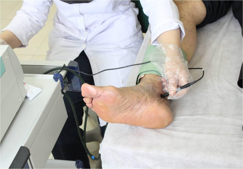 درمان عفونت در پای دیابتی حدود ۳ روز زمان می برد