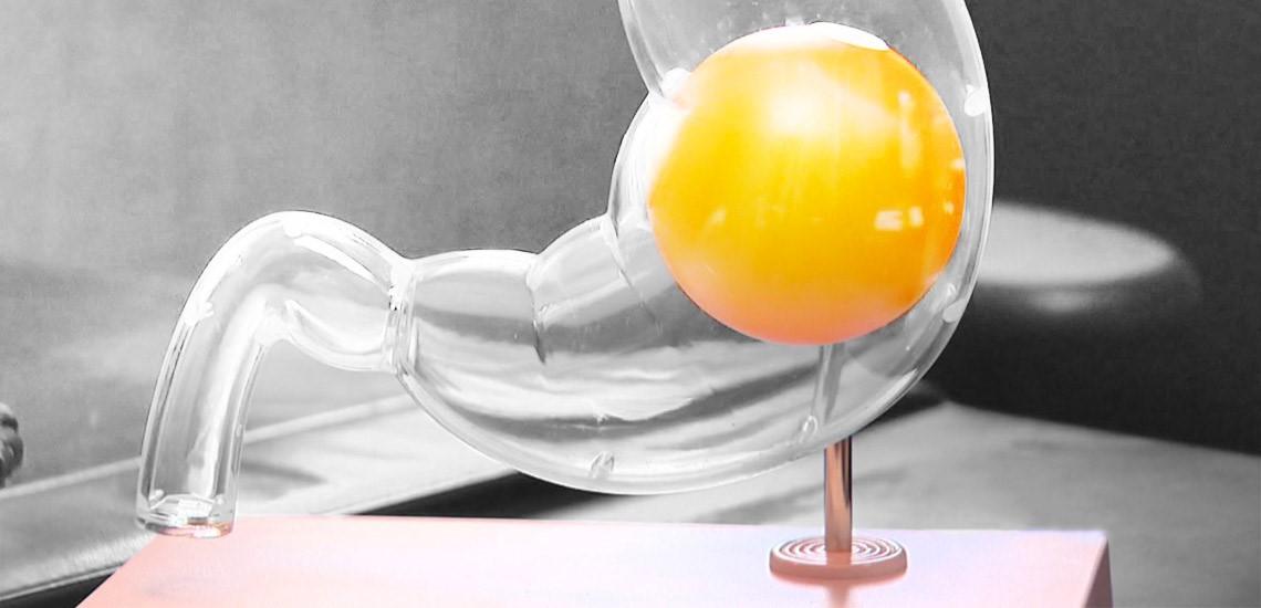 تجربه ی افرادی که بالون را در معده قرار داده اند