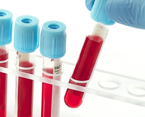 دلیل انجام آزمایش خون برای عمل جراحی اسلیو معده چیست؟