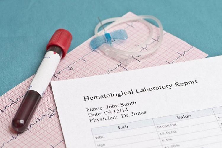 آزمایش انعقاد خون قبل از انجام عمل اسلیو معده با چه هدفی انجام می گیرد؟