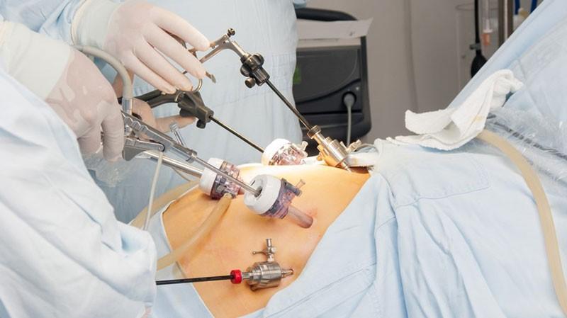 این نوع جراحی به چه صورت هایی انجام می شود؟