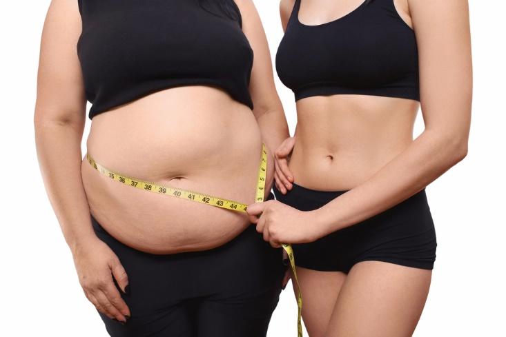 افراد بیمارو دارای اضافه وزن زیاد