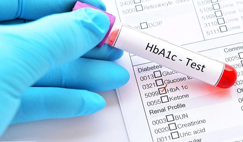 چرا قبل از انجام عمل جراحی اسلیو معده آزمایش دیابت انجام می گیرد؟
