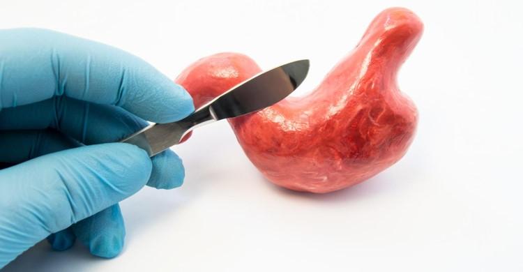 نظر متخصصین در خصوص اطلاع رسانی در مورد مصرف انواع داروها و همچنین شرایط باردار بودن قبل از انجام جراحی بای پس معده چیست؟