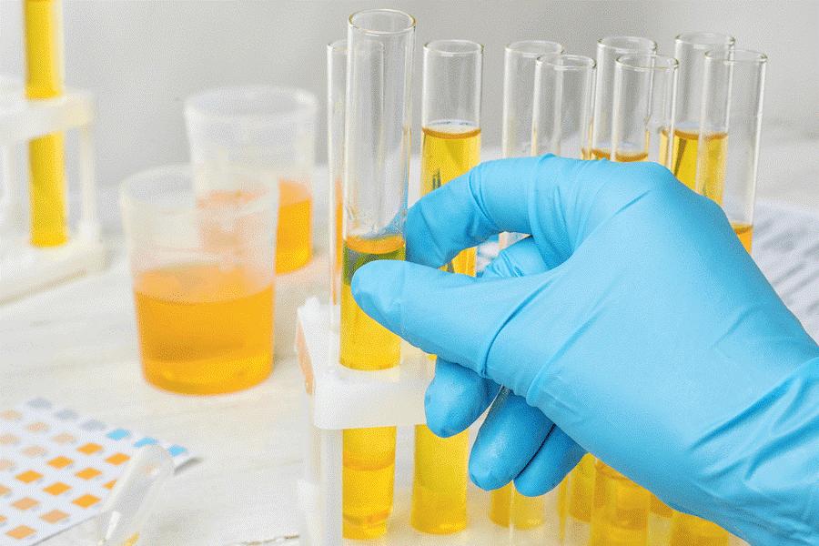 مهم ترین اهداف انجام آزمایش ادرار قبل از اقدام به عمل جراحی اسلیو معده کدام موارد می باشند؟