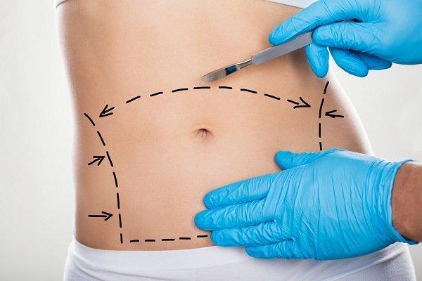 انواع جراحی های چاقی