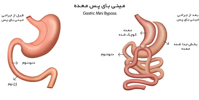 پیوند داخلی روده به نسبت عمل بایپس معده کمتر می باشد