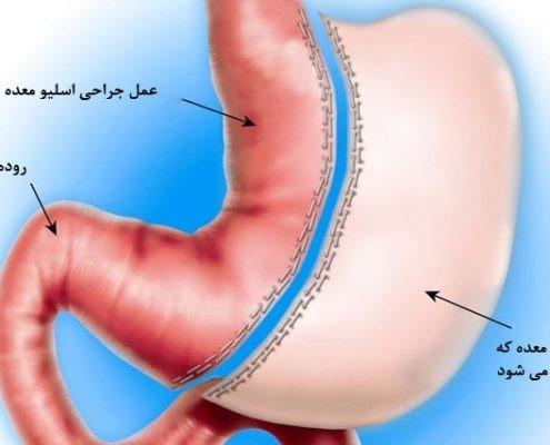 هدف استفاده از عمل های جراحی لاغری کاهش وزن سریع است