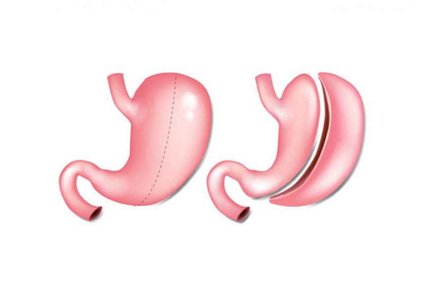 هدف اصلی از جراحی حلقه گذاری معده