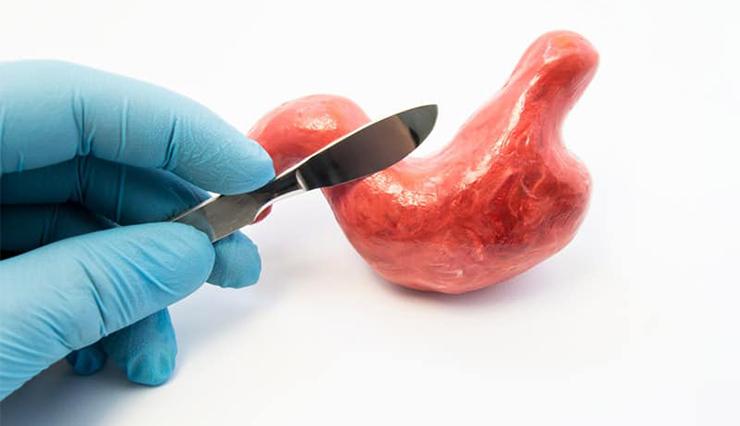چرا جراحی لاغری بهترین روش کاهش وزن است؟