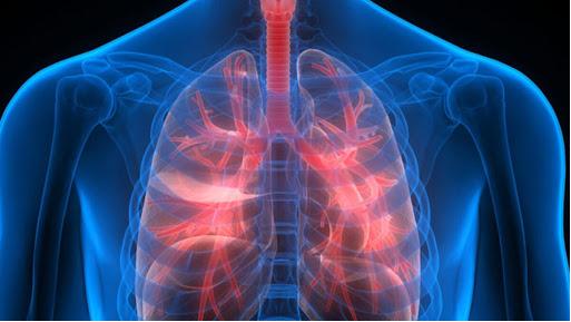 مراقبت های ویژه در افراد آمبولی چربی بعد از لیپوماتیک