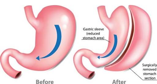 در شیوه ی عمل جراحی اسلیو معده، فرد به دو علت مهم وزن کم می کند