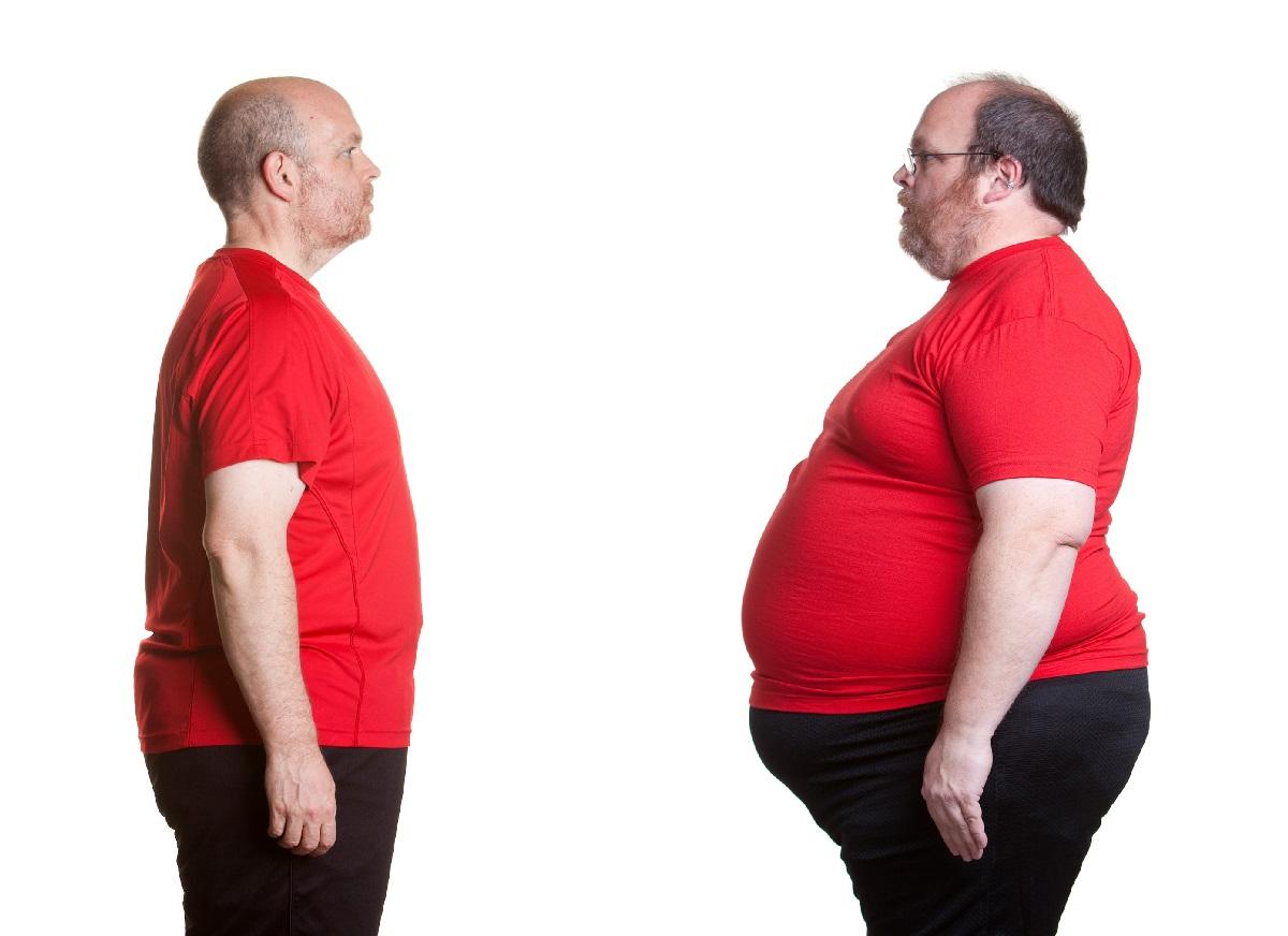 آیا با مهم ترین شیوه های عمل جراحی برای درمان مشکل چاقی و اضافه وزن آشنا هستید؟