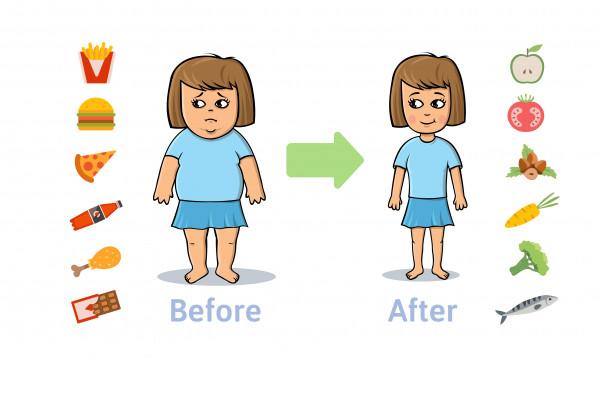 رژیم غذایی بعد از عمل مینی بای پس معده چیست؟