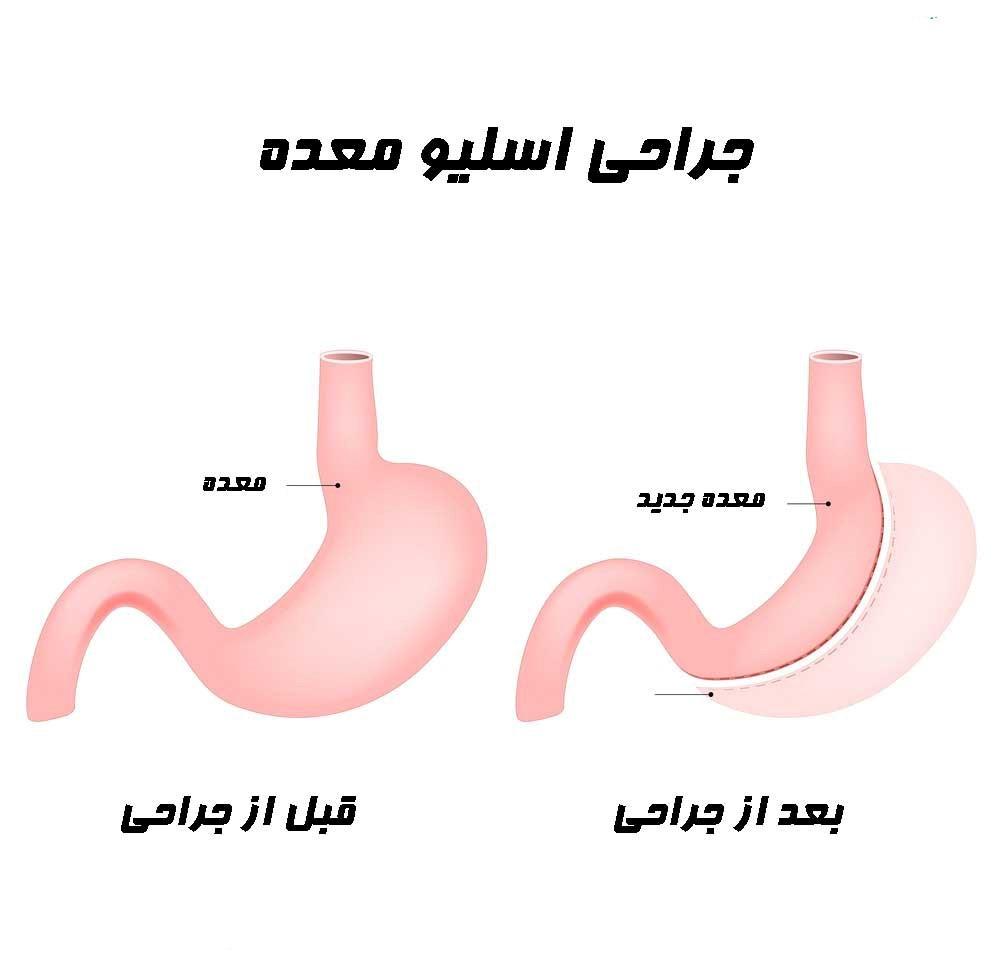 انتخاب عمل های جراحی