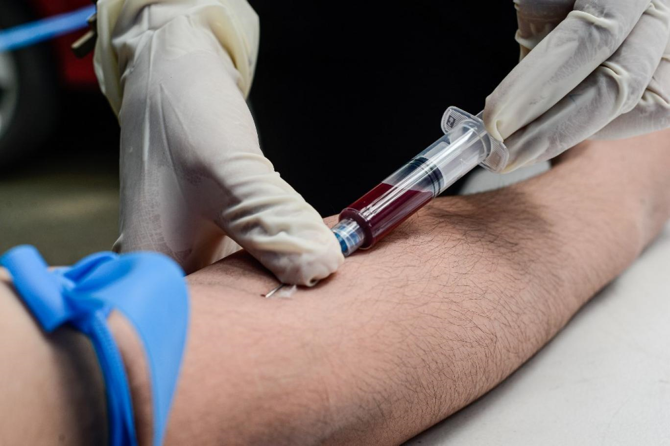 چرا آزمایش بی یو ان یا نیتروژن اوره ی موجود در خون برای افراد دیابتی تجویز میشود؟