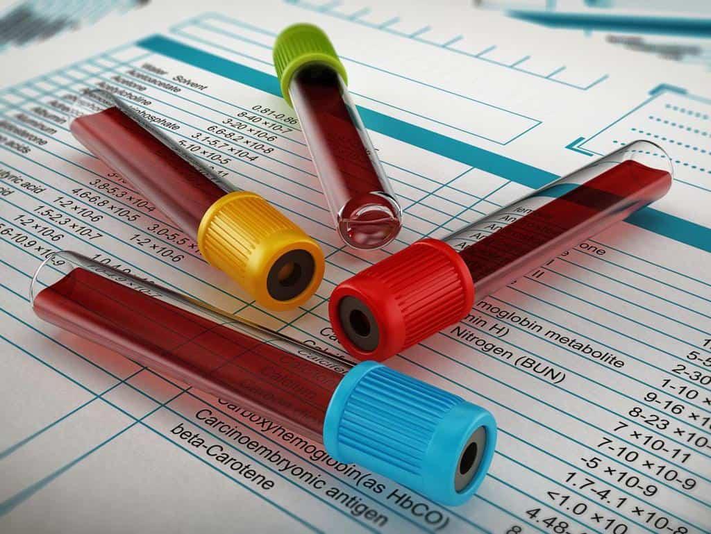در کنار آزمایش بی یو ان یا نیتروژن اوره ی خون چه آزمایش های دیگری به عنوان مکمل تجویز می شوند؟