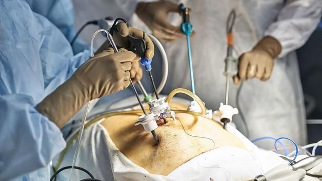 پرسش و پاسخ جراحی اسلیو