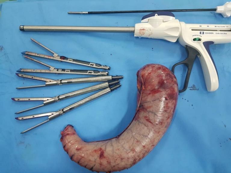 شکل معده پس از انجام دادن جراحی اسلیو چگونه خواهد شد؟