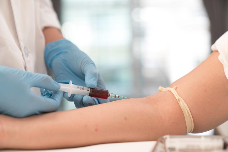 بالاتر بودن میزان به دست آمده از آزمایش نسبت نیتروژن اوره ی خون به کراتینین در مقایسه با رنج نرمال سبب بروز چه مشکلاتی در فرد می شوند؟