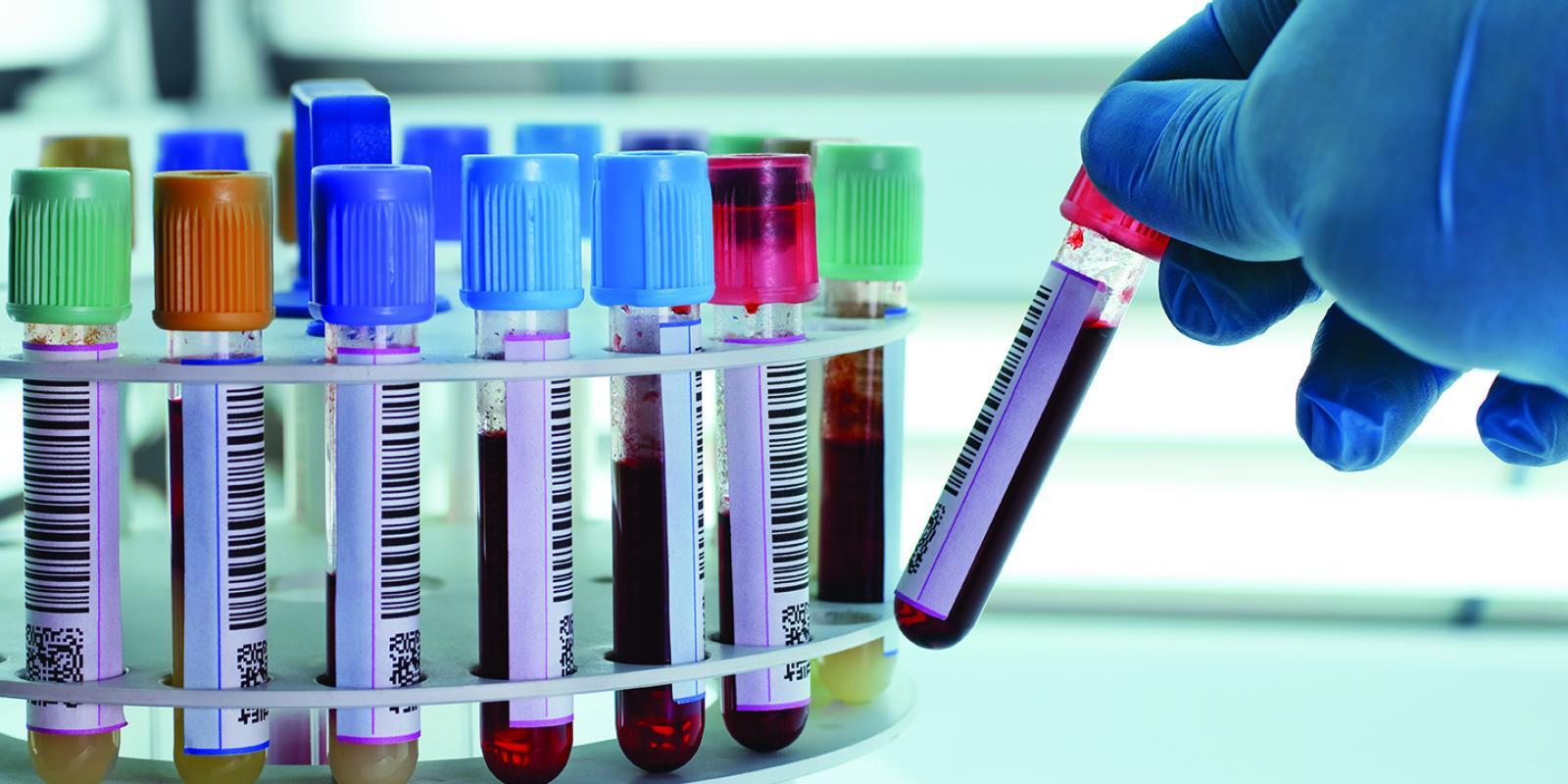 معنی blood urea در آزمایش خون