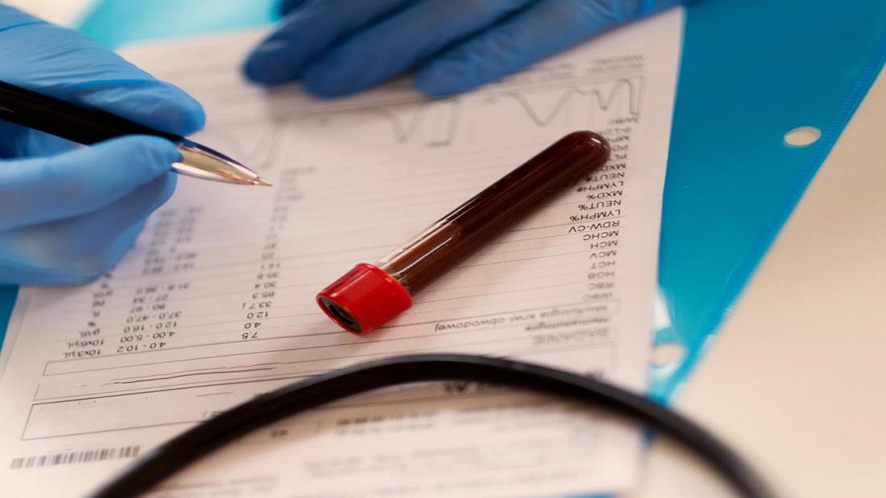 نمونه گیری خون از پشت دست