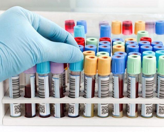 علت اصلی مبتلا شدن بیماران دیابتی به عوارض این بیماری