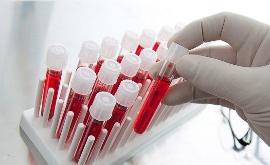 داروهای موثر در سطح کراتینین خون