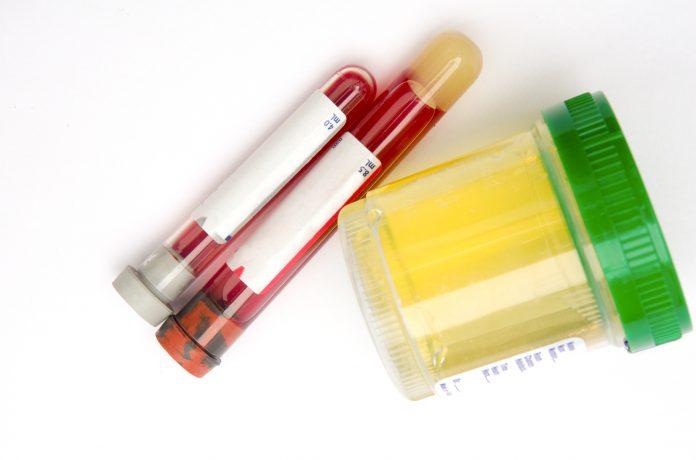 هدف از انجام آزمایش کراتینین چیست؟