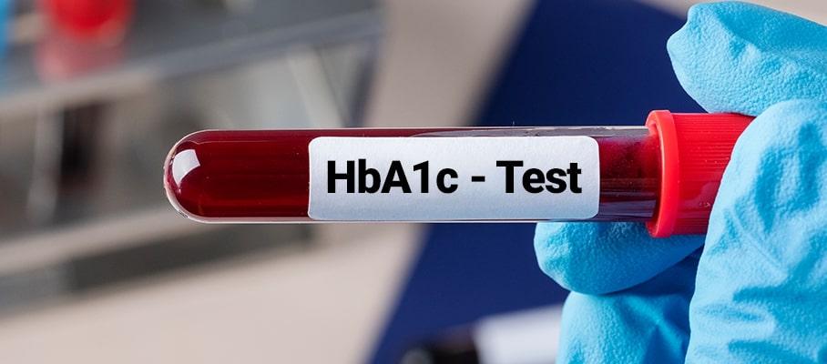 چگونگی آزمایش A1c