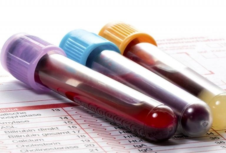 تفسیر نتایج egfr در آزمایش خون چیست