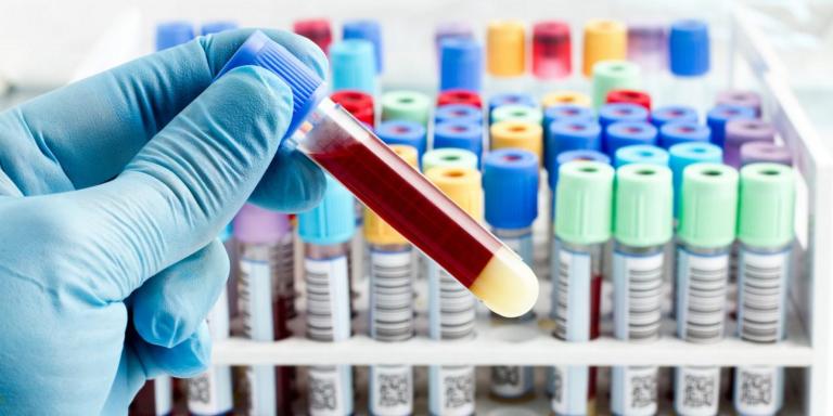 نتایج egfr در آزمایش خون چگونه است؟