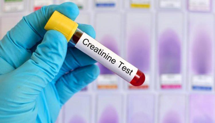 برای انجام تست کراتینین از افراد نمونه های ادرار و نمونه ی خونی دریافت می شود
