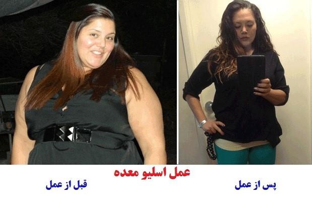 عکس کسانی که عمل اسلیو انجام داده اند