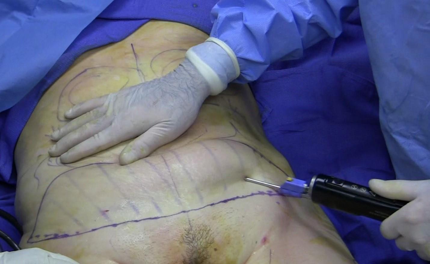 چند نوع عمل جراحی برای کاهش وزن وجود دارد؟
