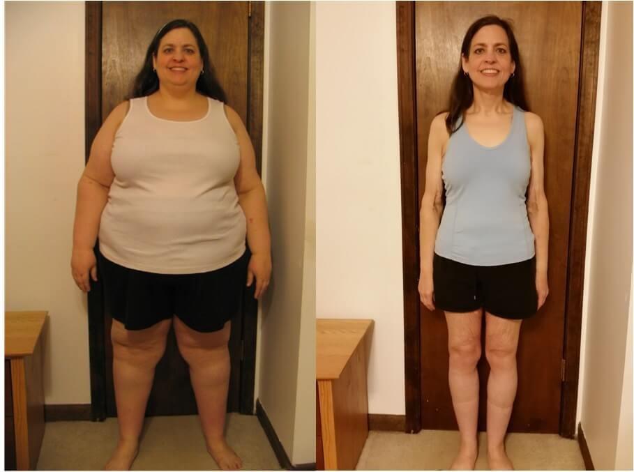 روند کاهش وزن بعد از عمل اسلیو معده چطور است؟