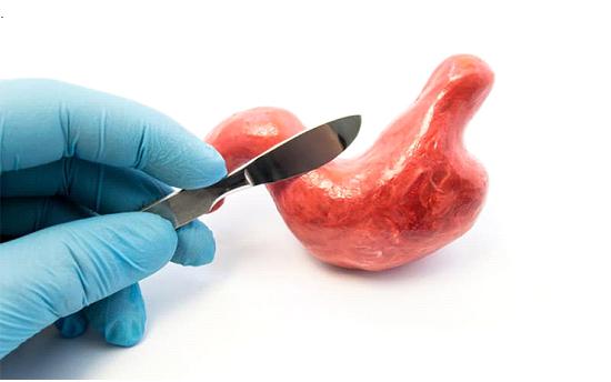 شیوه های انجام جراحی اسلیو معده