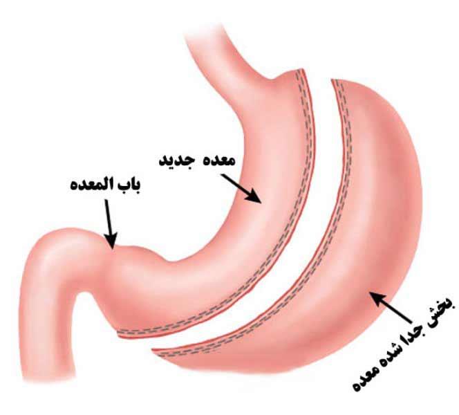 حداقل به مدت دو هفته قبل از انجام جراحی اسلیو معده از مصرف سیگار خودداری نمایید